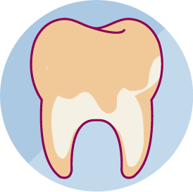 치주 질환이나 노화현상에 의해 치아 뿌리가 노출/마모 된 경우