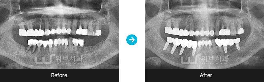 뼈이식 임플란트 증례사진