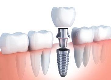 1인당 평생 2개의 치아 건강보험 적용 가능