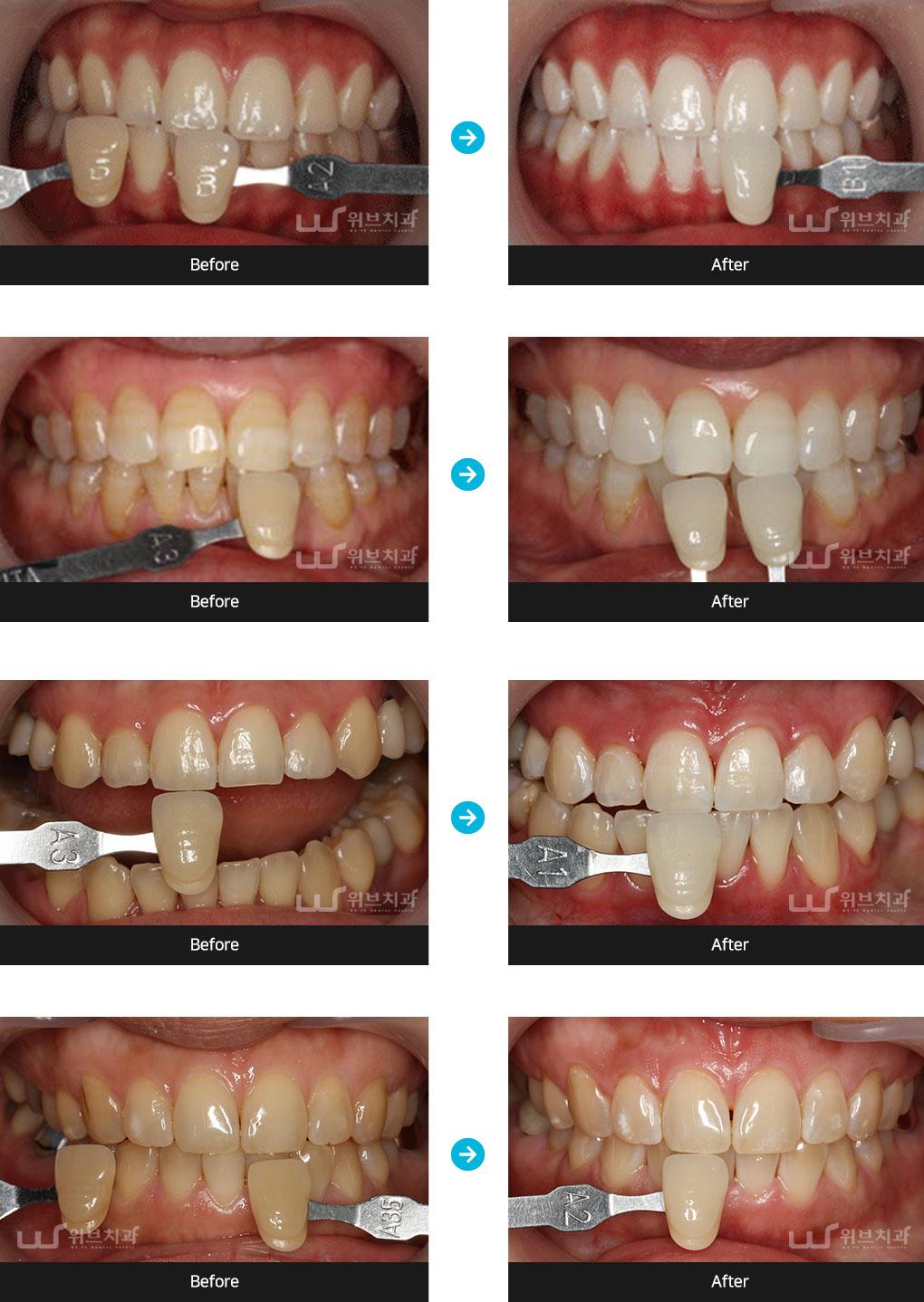 치아미백 증례사진