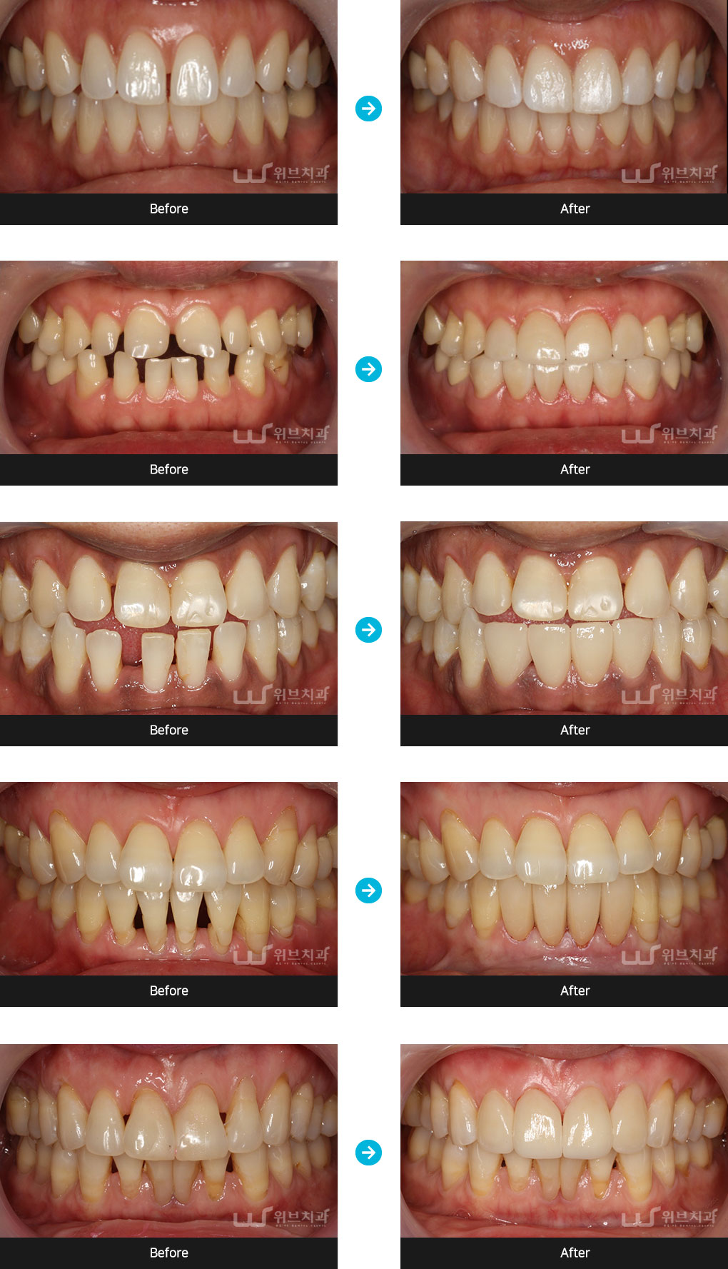 치아성형 증례사진